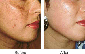 before and after Microdermabrasion facial